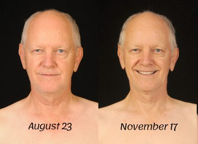 Roger-Before-After-Face-800